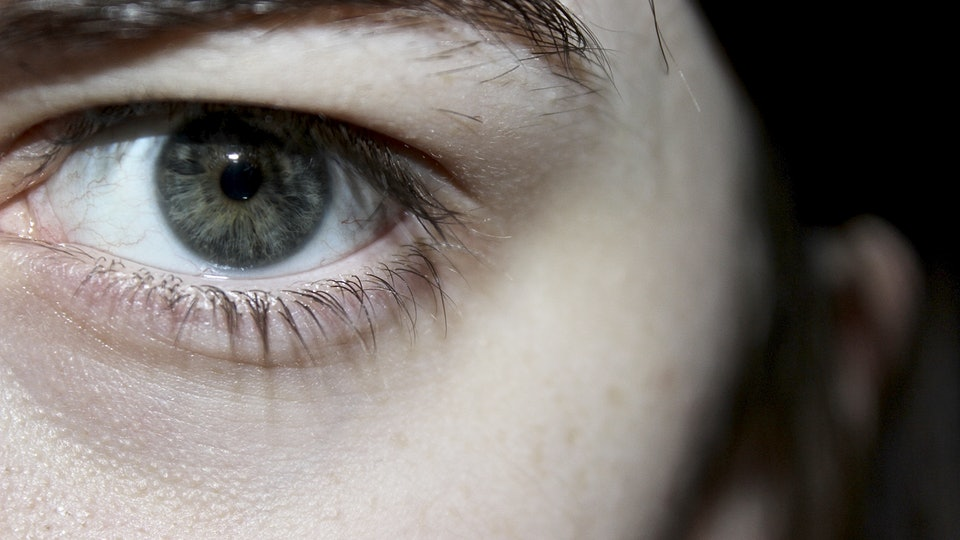 9 Surprising Things That Cause Dark Eye Circles