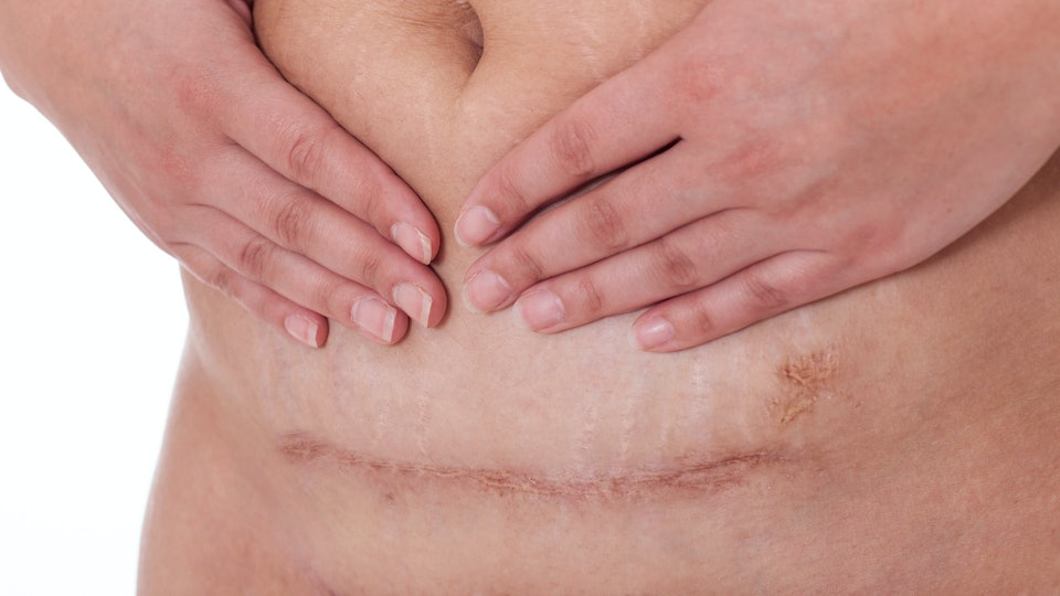 Will A C-Section Scar Fade? Yes, But It May Need Some Help