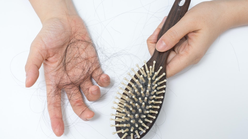 can you prevent newborn hair loss