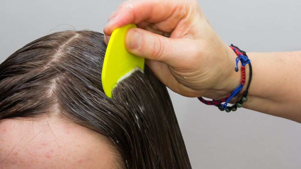 Is It Safe To Use Lice Treatments While Pregnant