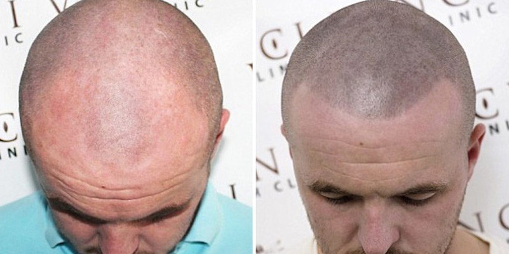 Some Bald Men Are Getting Tattoos So It Looks Like They Have Hair
