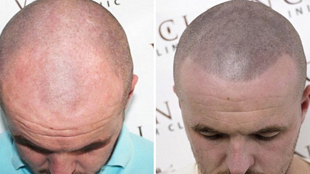 Some Bald Men Are Getting Tattoos So It Looks Like They Have Hair ...