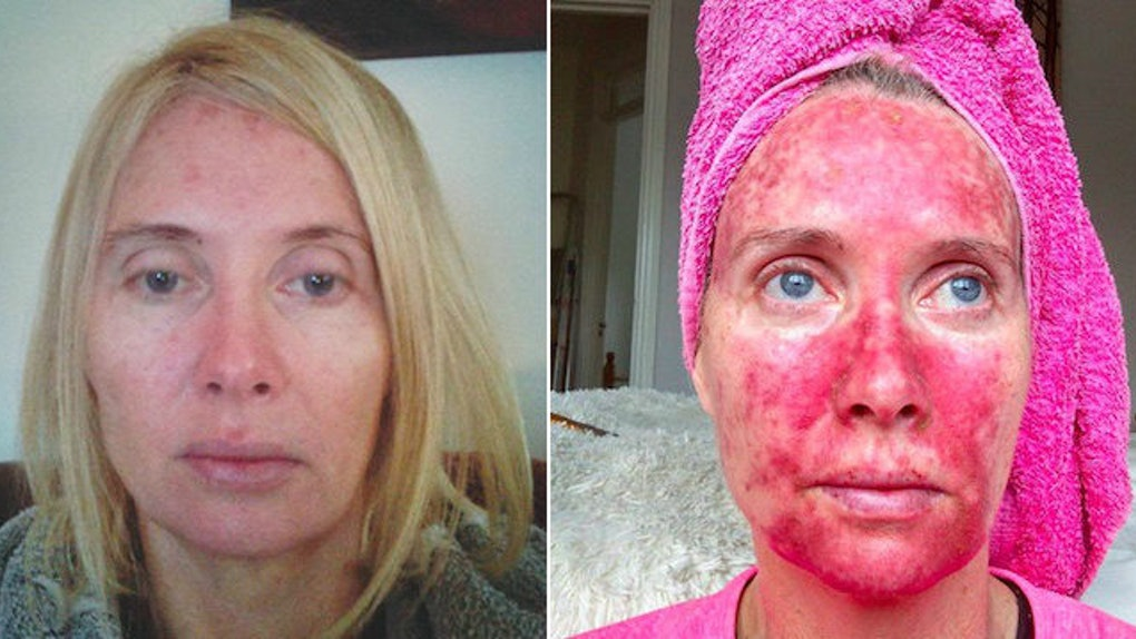 Woman's Before-And-After Pics Show Treatment Post-Tanning