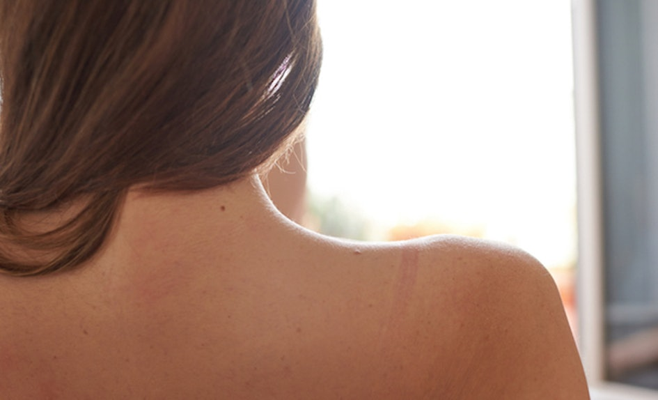 What Birthmarks Mean And How To Interpret Yours