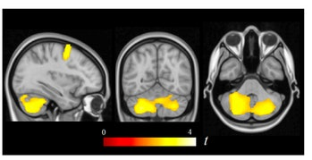 green space brain development