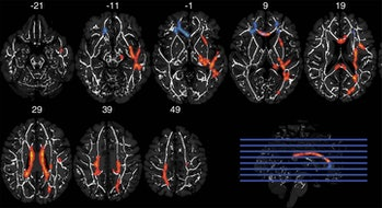 brain scans frontal white matter