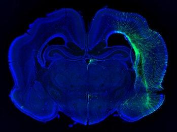 ferret brain