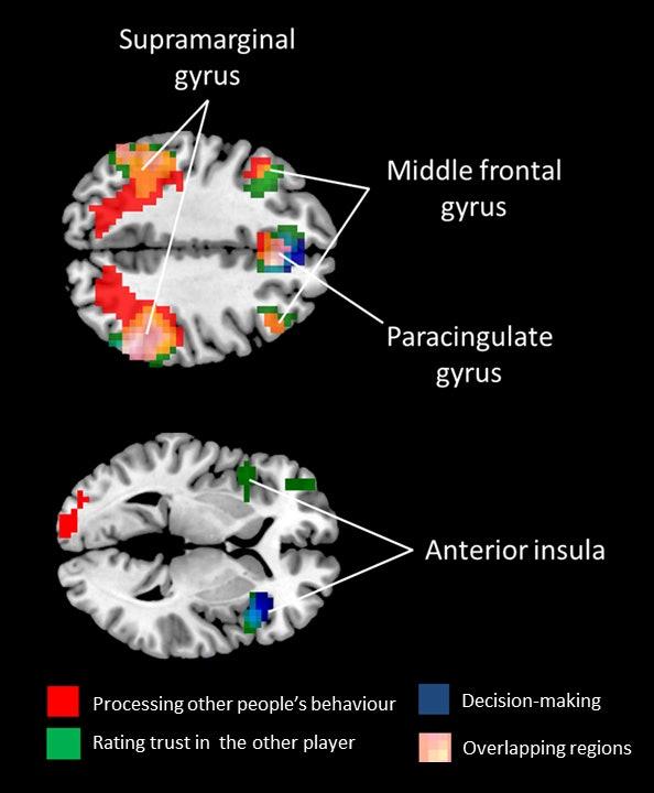 MDMA brain