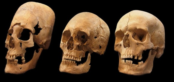 Researchers suspect elongated skulls (left) found in modern-day Germany belonged to southeastern European women sent to marry for diplomatic purposes.