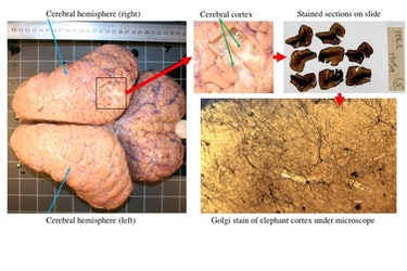These images illustrate the process of removing a small section of cerebral cortex from the right ce...