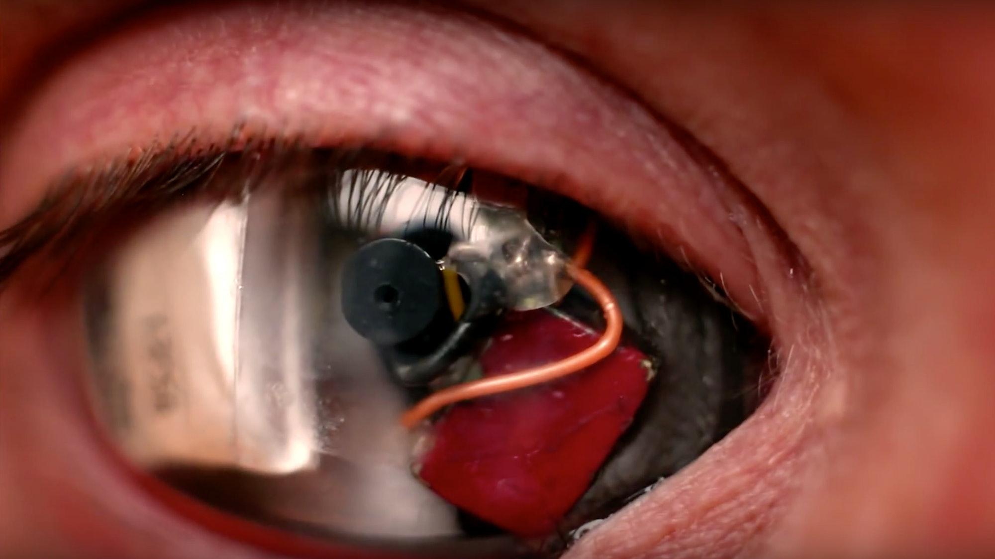 Eyeborg Cyborg Robot Eye Bionic Singularity Neural Lace Rob Spence