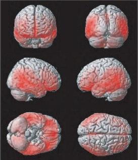 brain scans, teens