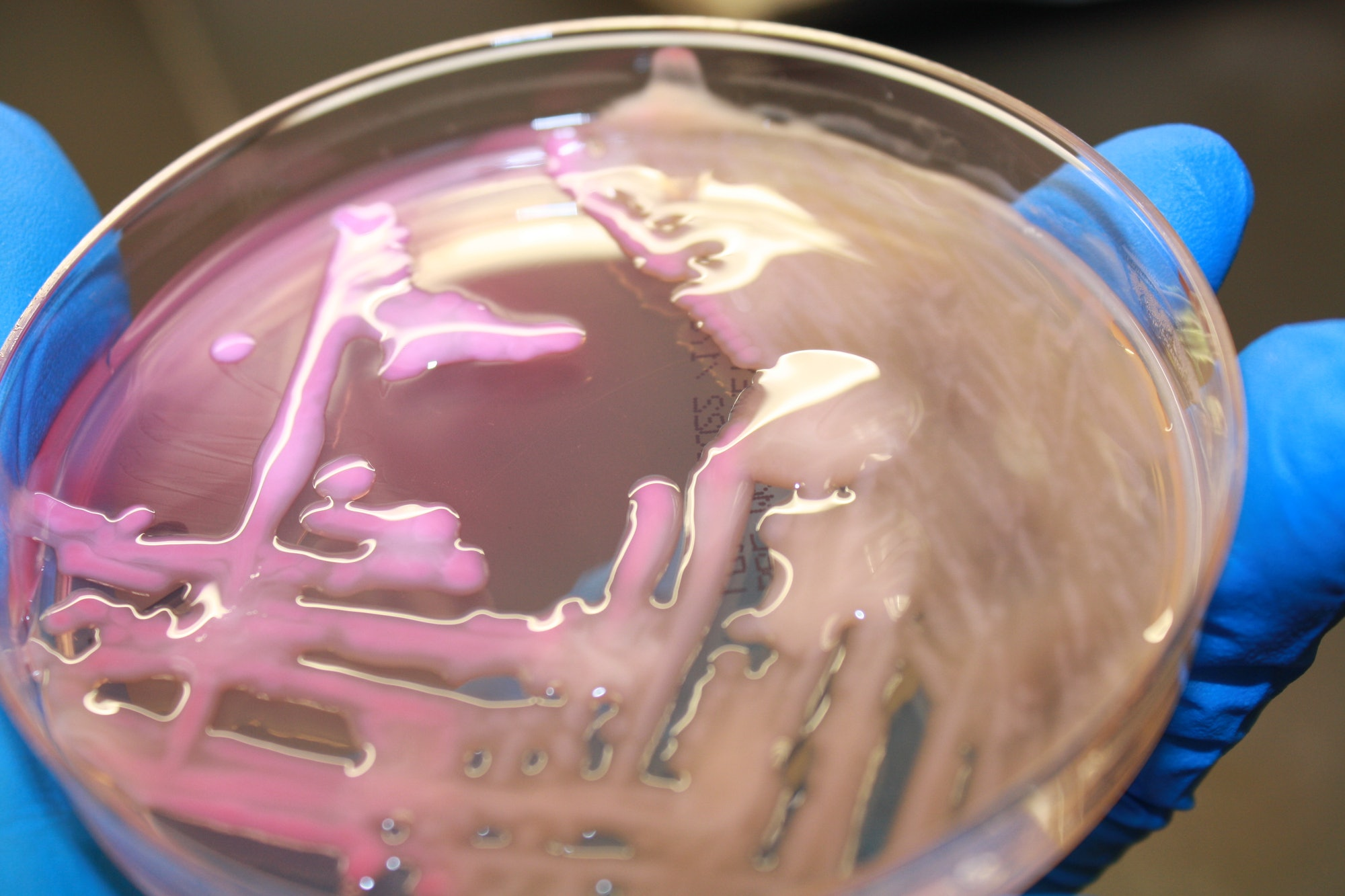 K. pneumoniae growing on MAC in a petri dish.