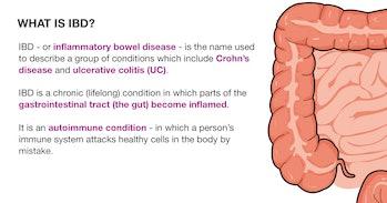 What is inflammatory bowel disease (IBD)