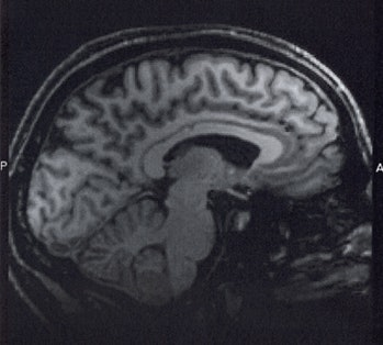 fMRI of 'me'