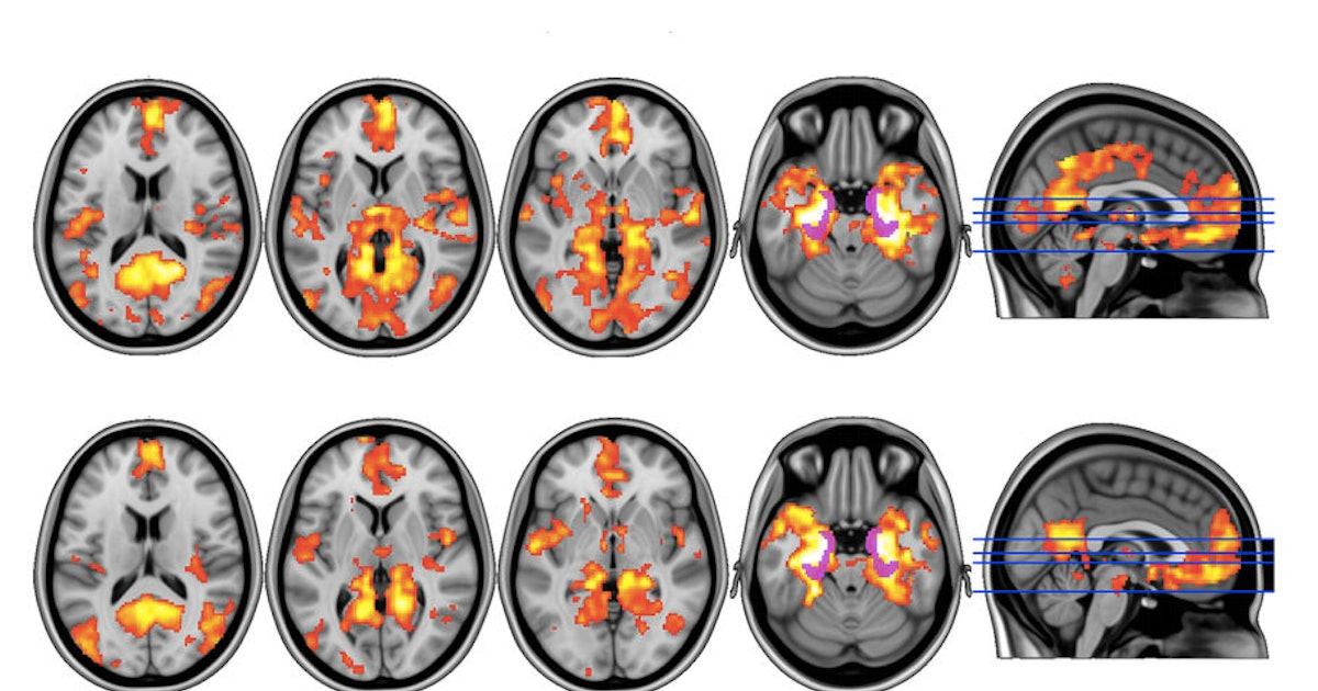 Magic Mushrooms Hit Brain's 'Reset' Button in Depressed Patients