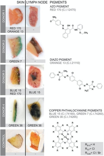 tattooed skin pigments