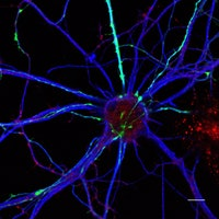 Light in the Attic: How Optogenetics Make Transhuman Brain Hacking Possible