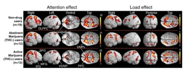 Statistical parametric maps of BOLD signals in abstinent marijuana users (THC−), active marijuana users (THC+) and non-drug user comparison subjects. Surface maps demonstrate the effect of attention (independent of load, left) and the effect of attentional load (increasing difficulty from tracking 2 to 3 to 4 balls, right) on repeated measures ANOVA (random-effects analyses) for each group. See Table 3 for P-values and T-scores for brain regions with attention effects, and Table 4 for regions with load effects. DLPFC: dorsal lateral prefrontal cortex; IFG: inferior frontal gyrus; MFG: middle frontal gyrus; SFG: superior frontal gyrus; PPC: posterior parietal cortices; DMPL: dorsomedial parietal lobule; MT/V5: motion detection area.