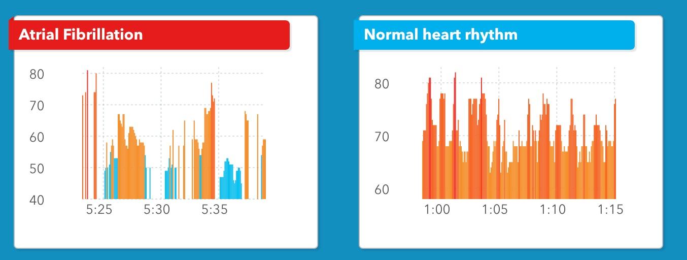 wearable heart disease detection
