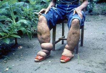 Elephantiasis of leg due to filariasis