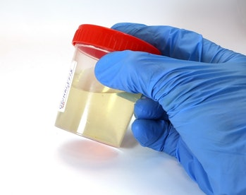 THC can be detected in your urine for up to two months in some cases.