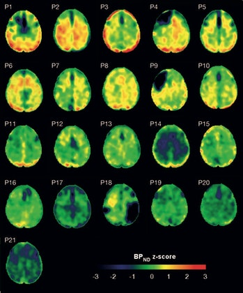 The brains with higher levels of tissue altered by TBI show more positive values (yellow to red), whereas those with less such tissue show negative values (black to green).
