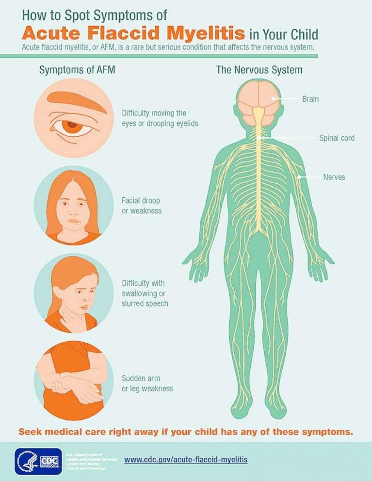 CDC information on spotting AFM