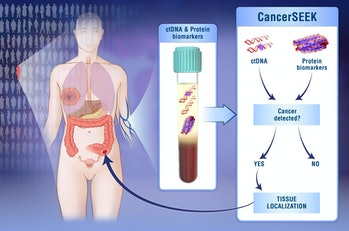 Doctors have developed a noninvasive blood test for eight types of cancer.
