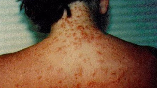 Sea lice can leave hundreds of tiny stings on a swimmer's body.