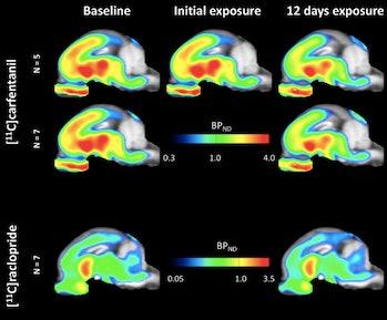 scintigraphies cérébrales, sucre