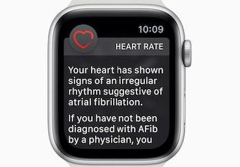 Apple Watch fib notification