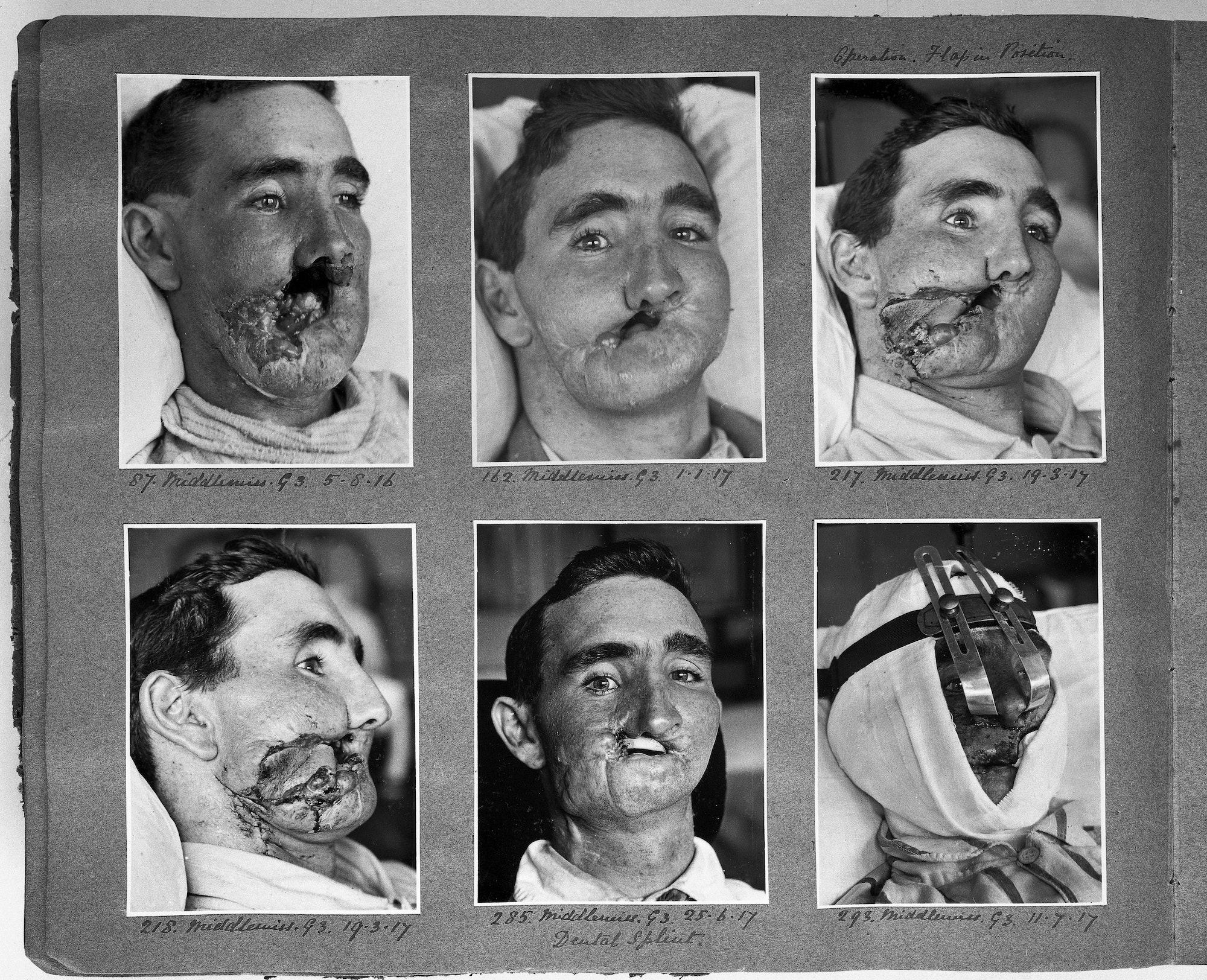 reconstructive surgery WWI