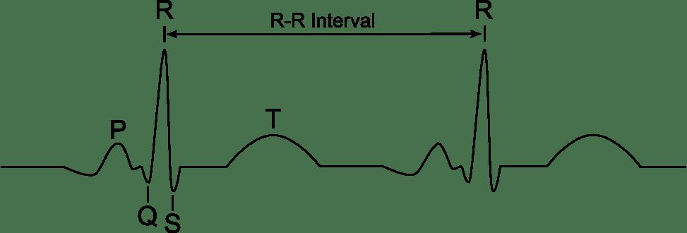 R-R interval
