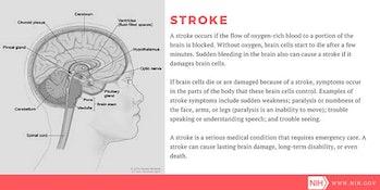 stroke, NIH