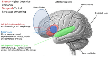 Language areas of the brain.