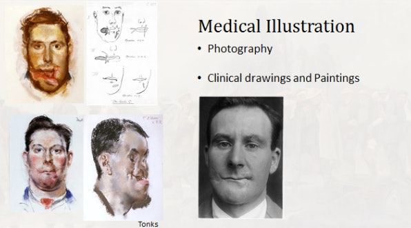 Case study, including illustrations by Henry Tonks.