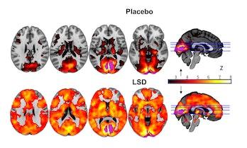 brains, LSD