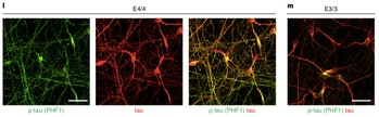 The three images on the left show cultured human neurons that express ApoE4. You can see the greater amount of neurofibrillary tangles in these three images than in the one on the far right, which has been edited to express ApoE3, which is not associated with Alzheimer's.