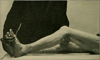"""Image from page 317 of """"A practical treatise on medical diagnosis for students and physicians"""" (1904)"""