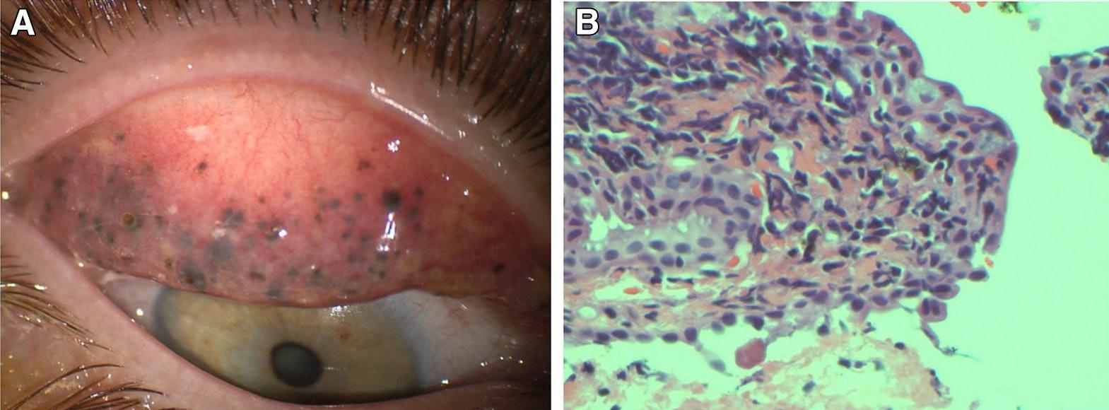 eyes ophthalmology eye injury eye disease