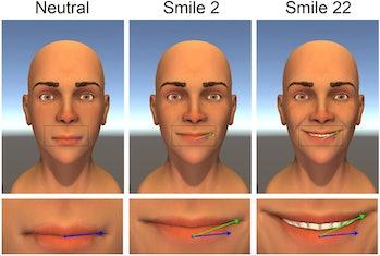 optimal mouth smile symmetry perfect smile rehabilitation simulation 3D animation