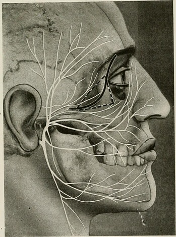 "Image from page 160 of ""Surgical treatment; a practical treatise on the therapy of surgical diseases for the use of practitioners and students of surgery"" (1920)"