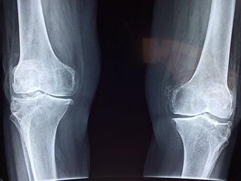 cartilage, x-ray