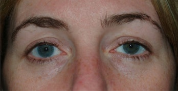 This woman's drooping left eyelid turned out to be the result of a migrated contact lens from 28 years ago.