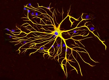Astrocytes, a type of brain cell. The nuclei of individual cells are stained blue, and structural filaments within the cell are yellow.