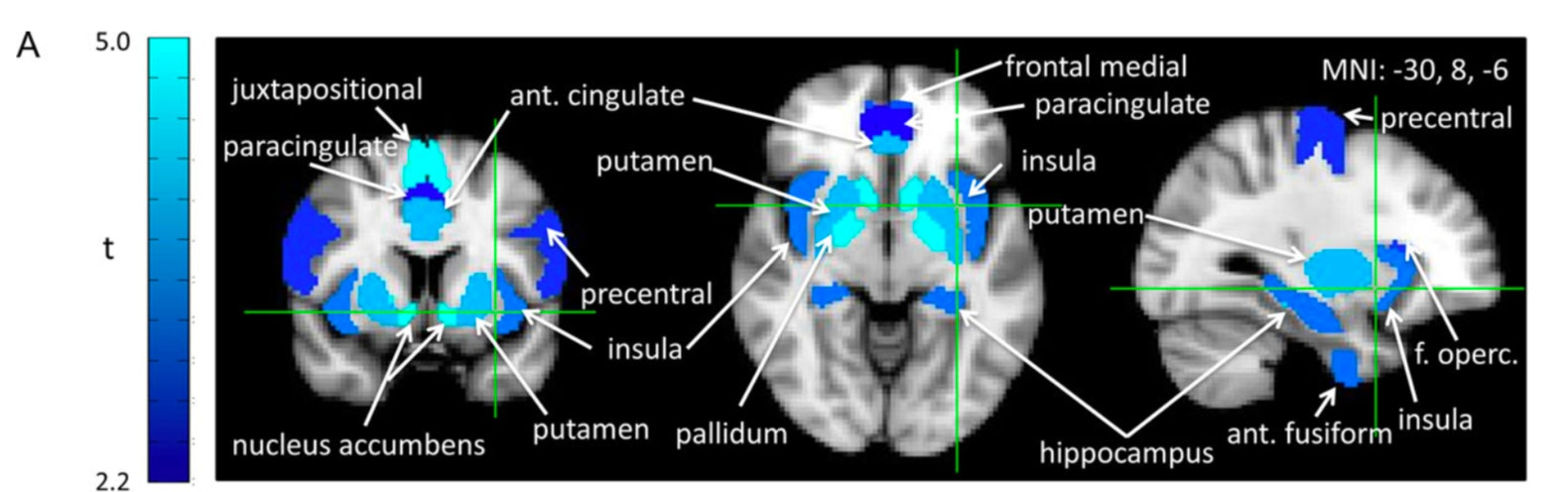 brain scans group bias