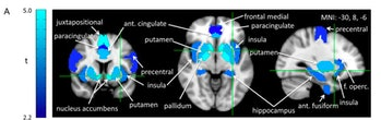 brain scans group bias