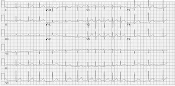 Afib, heart chart