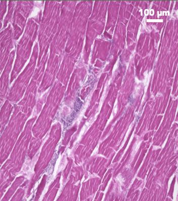 skeletal muscle tissue of meat